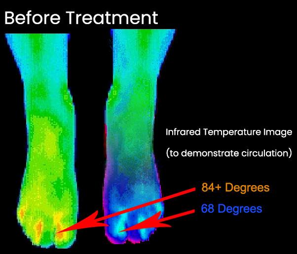 Infrared Heat Map before ReBuilder Treatment